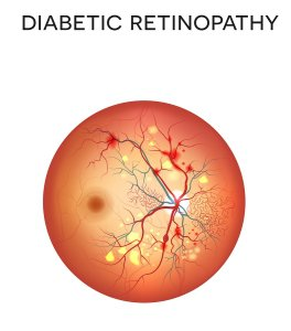 Diabetic retinopathy in Chicago